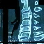 Maladie des japonais du rachis cervical TDM RACHIS CERVICAL