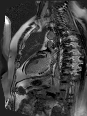 Infarctus trans-mural inférieur étendu avec remaniements hémorragiques, probablement non viable (critères indirects) Rehaussement tardif - PSIR
