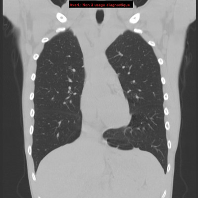 Pneumothorax droit sur blebs (bulle)  TDM Thorax Coronal Fenêtre Air