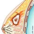 Cancer du sein  Mammographie