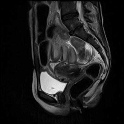Occlusion mécanique colique sur endométriose digestive Sagittal T2