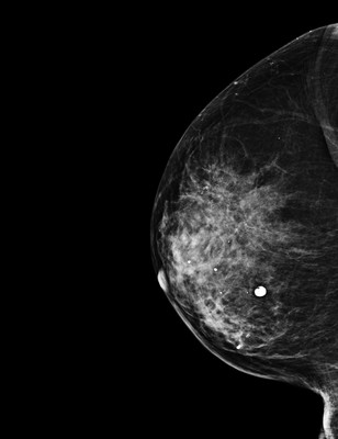 Intermediate grade ductal carcinoma in situ  RML