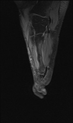 Fracture de contrainte du tiers moyen du 4ème métatarse droit sagittal DP fat sat