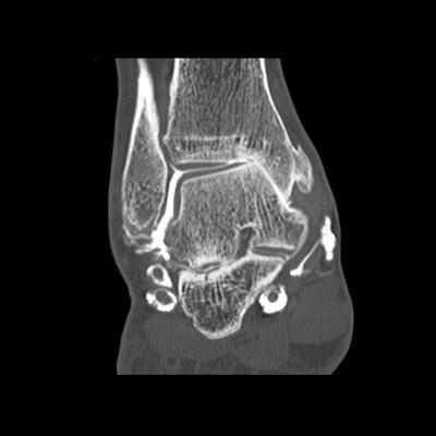 Arthropathie talo-crurale grade IV sur son versant médial et sous-talienne postéro-latérale dans son versant latéral secondaire à une rupture complète ancienne des faisceaux antérieurs et moyens du ligament collatéral latéral Coronal