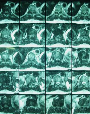 asoociation myélopathie  dorsale et canal lombaire étroit IRM dorsale