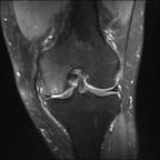 Ostéonécrose mécanique du condyle fémoral médial DP FS Coronal