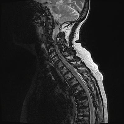 Aggressive vertebral angioma of T6 T2 TSE DIXON SAG_opp