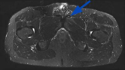 Enthésopathie long adducteur   IRM Membre inférieur Axial STIR