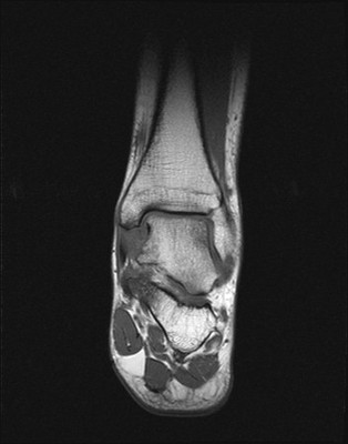 Entorse bilatérale de cheville avec rupture du ligament talo-fibulaire antérieur T1 Coronal