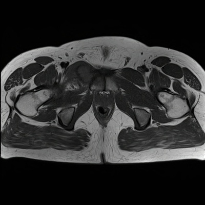 Osteoblastoma T1 TRA