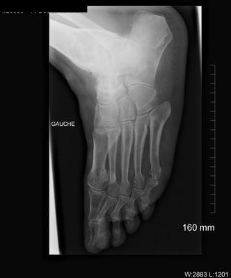 Arthrose évoluée tibio-talienne et scapho-talienne majeure Radiographies