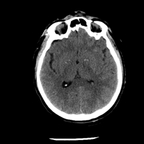 Craniocerebral trauma, Carotid artery injury with dissection, traumatic perforation of GI tract, pulmonary artery injury, Chance fracture Head CT, Axial plane, Soft tissue window