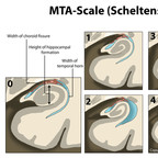 MTA-scale for Medial Temporal lobe Atrophy (Scheltens) scheltens-mta-scale