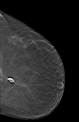 Late recurrence of cancer of the left breast  LCC Tomosynthèse