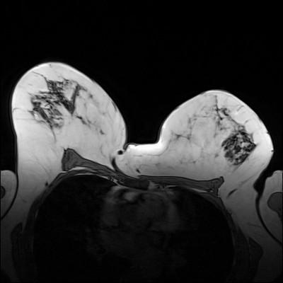 Carcinome canalaire infiltrant de grade SBR 2 T1