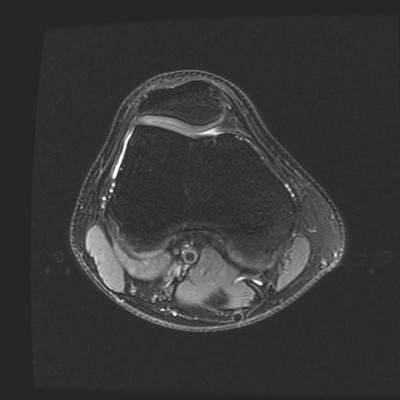 bipartite patella  MRI Lower limb Axial Fat Sat DPw