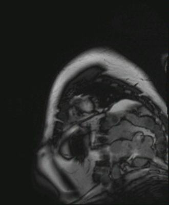 IDM antéro-septo-apical, non viable sans thrombus intracavitaire résiduel CINE TRUFI PA BALAYAGE_