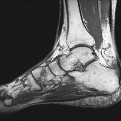 Enthésopathie achiléenne avec clivage intra-tendineux T1 Sagittal