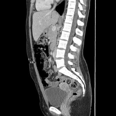 Colique néphrétique gauche sur lithiase urétérale iliaque et calcul corraliforme Sagittal portal