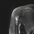 Enchondroma of the proximal humerus Coronal T2 Fat Sat MRI