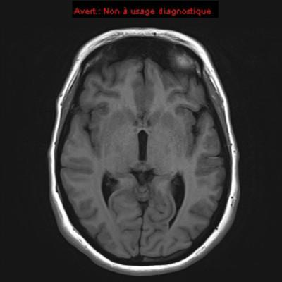 HEMANGIOBLASTOME  IRM Crâne Axial T1