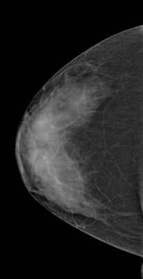 Doubt regarding architectural distortion of the right upper lateral quadrant, corresponding to superimpositions with tomosynthesis. RCC Acquisition Tomo