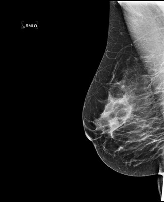 Stable fibroadenomas and hamartoma in the right breast, ACR 2. 3-RMLO