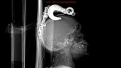 Crochet de remorquage intracérébral avec hémorragie sous-arachnoïdienne focale, collection sous-durale et embarrures multiples  Radiographie Crâne Profil