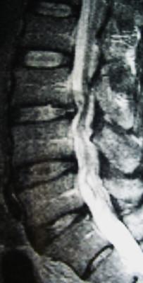 Forme rare d'une hernie discale lombaire image 2