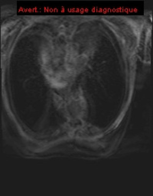 Amylose cardiaque img966