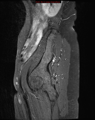 Embolisation de fibromes utérins  IRM Pelvis - Contrôle à 3 mois