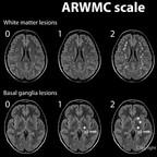 ARWMC scale ARWMC-Scale