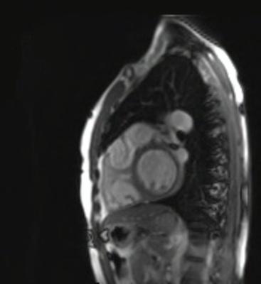 Correction complète de Fallot avec dilatation des cavités droites et insuffisance pulmonaire trufi_LA