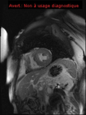 Syndrome de tako-tsubo - Sidération myocardique  IRM TI scooting