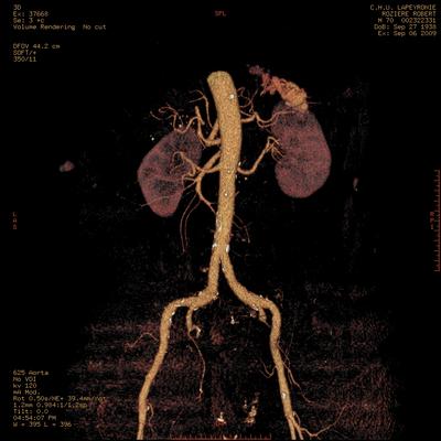 Hepatic fracture, Active hemorrhage Abdominal vessels 3D VR