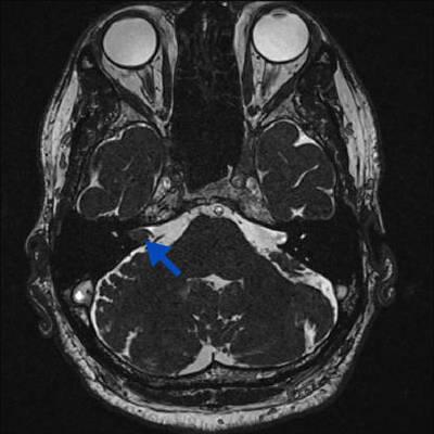 Schwannome cochléovestibulaire (neurinome de l'acoustique) T2 CISS 3D 0,6mm