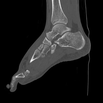 Traumatic diaphragmatic rupture, Thoracic and abdominal injuries, burst vertebral fracture, foot injuries Left foot, Sagittal plane, Bone window