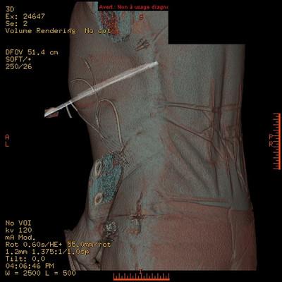 Traumatisme pénétrant abdominal par couteau  TDM 3D