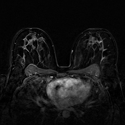 Fibroadénomes et hamartome stables du sein droit,  ACR 2. Soustraction 4 min