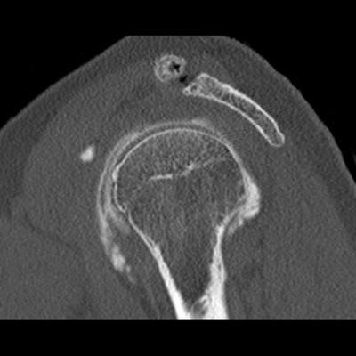 Desinsertion du tendon du muscle subscaulaire quasi complète.  TDM Membre supérieur Sagittal Intra-articulaire