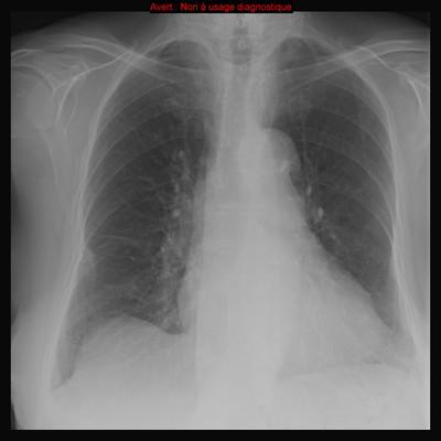 Dissection aortique et tamponnade post-TAVI (Transcatheter Aortic Valve Implantation)  Radiographie Thorax avant TAVI