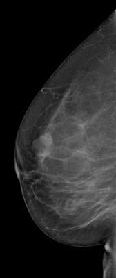 Stable fibroadenomas and hamartoma in the right breast, ACR 2. RML Acquisition Tomo