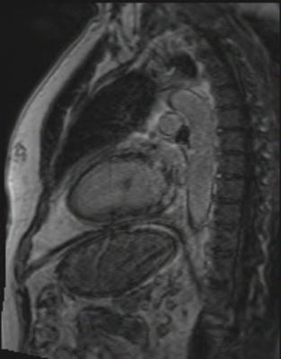 Péricardite chronique constrictive viabilite_3d_LA