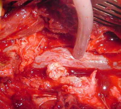 Forme rare d'une hernie discale lombaire image 6