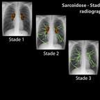 Sarcoïdose Sarcoïdose Stades sur la radiographie de thorax