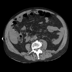 Hepatic fracture, Active hemorrhage Abdomen CT without inj
