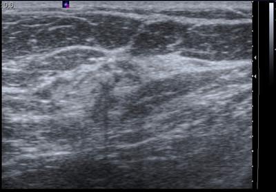 Récidive tardive de cancer du sein gauche Echo