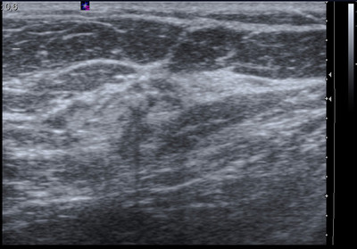 Late recurrence of cancer of the left breast  Echo