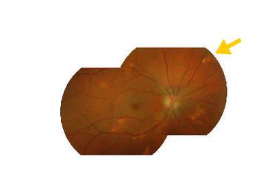 Occlusion de la branche temporale inférieure de l'artère centrale de la rétine OD Mosaïque OD