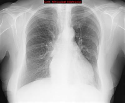 Pneumopathie interstitielle lymphocytaire (LIP)  Radiographie Thorax Face